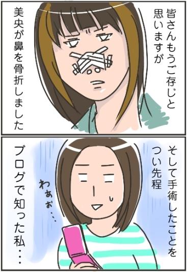 妹ちゃんがプロレスラー-美央の鼻01