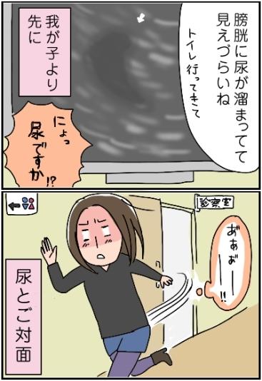 姉ちゃんは育児中-エコー03