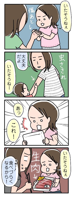 姉ちゃんは育児中-痛そう