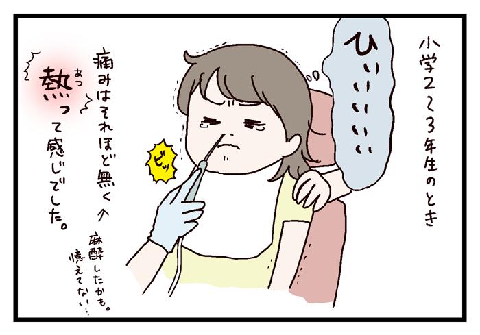 鼻血 てる 子供 寝 時