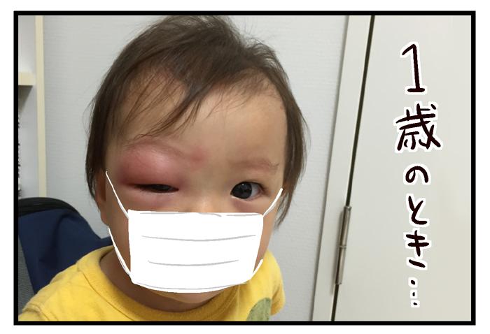 蚊に刺され まぶた 腫れ
