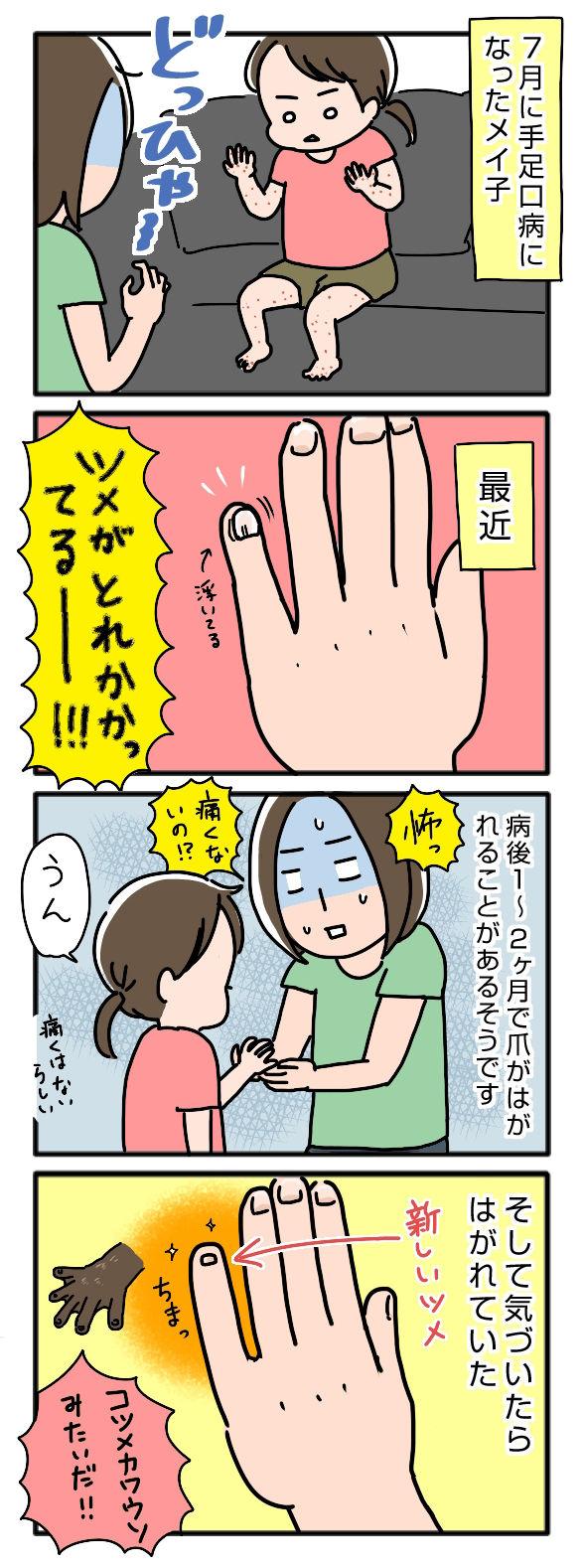 手足口病の影響