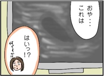 姉ちゃんは育児中-エコー02