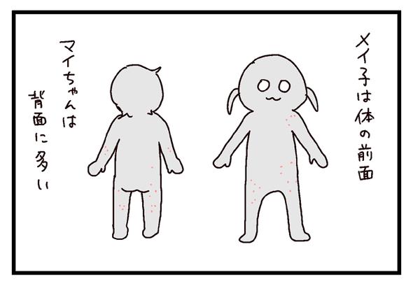 icchomae580_04