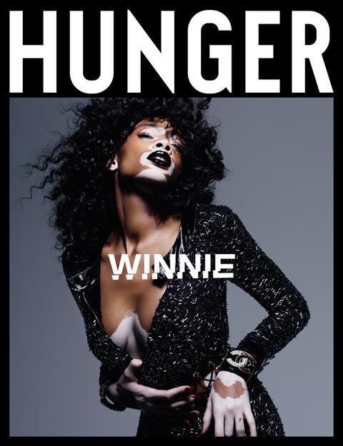 Winnie-Harlow-Hunger-Magazine-01