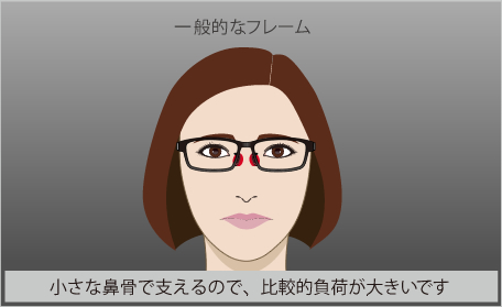 一般的眼鏡は鼻で支え鼻に跡や傷み色素沈着があります。