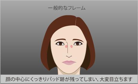 眼鏡を外すと傷みや化粧はがれ取れ、跡や色素沈着があります