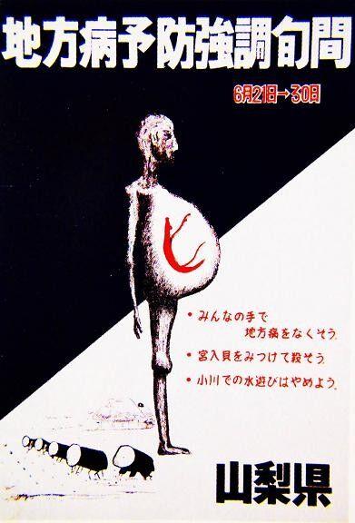 【グロ注意】日本住血吸虫症の闇が深すぎる・・・の画像