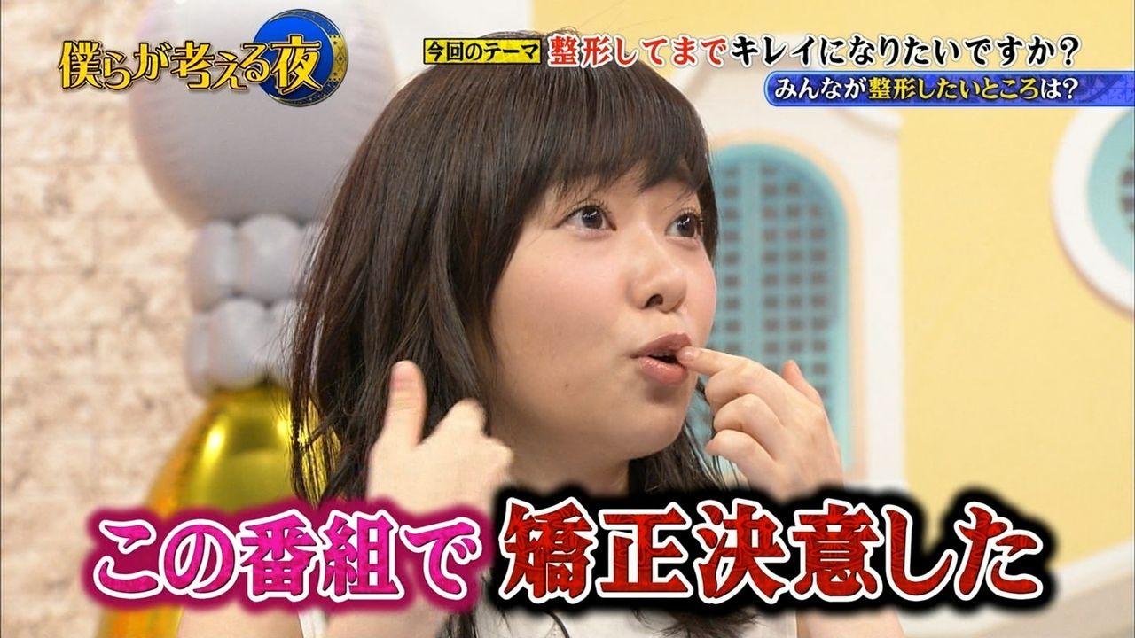 【エンタメ画像】【HKT48】指原莉乃が歯の矯正を決意wwwwww