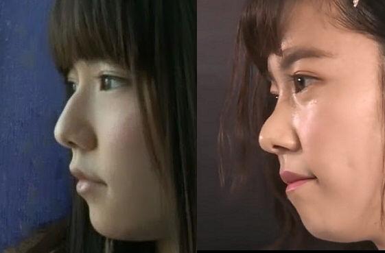 【エンタメ画像】《悲報》島崎遥香さん、顔が変形する