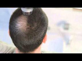 増毛パウダーを振りかけた男性がMRIに入る→装置の中にパウダーが飛び散り故障