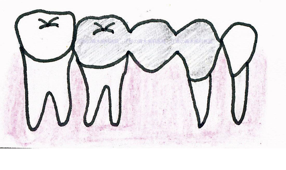 ブリッジをご存知でしょうか?抜歯などで歯がなくなった部分に人工歯を補うた... ブリッジの下には