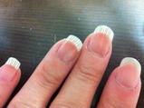 mis dedos