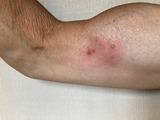 帯状疱疹-2