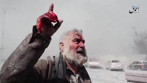 空爆で負傷したモスル市民