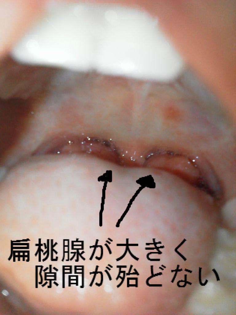 扁桃腺・アデノイド切除手術後の口臭・その他の日常 : AKO's voice