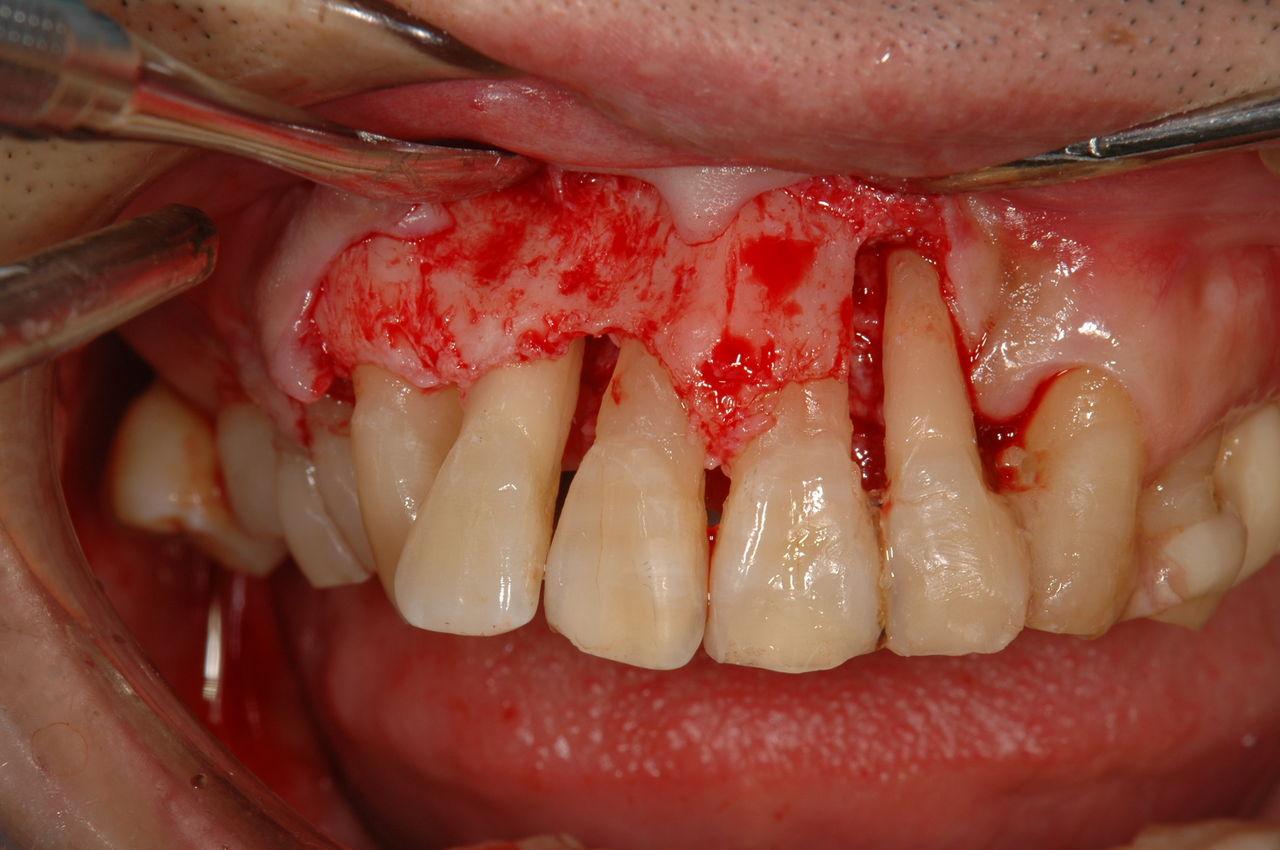 歯科矯正のリスクとは?歯肉後退とブラックトライアングルの ...