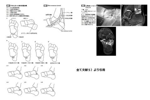 三角骨症候群