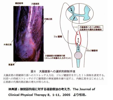 大腿直筋の抑制
