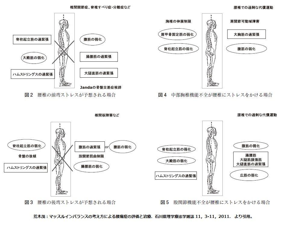 理学療法士 (PT) だって 人間だもん : 姿勢評価で運動療法を考える