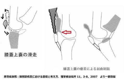 膝蓋上囊の癒着