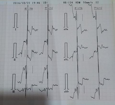 ジェイ_健康診断7