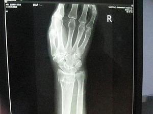 橈骨縁位端骨折
