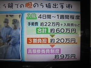 日本だと9万円