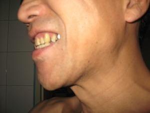 歯科治療終了