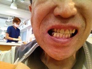 今日は歯のお掃除