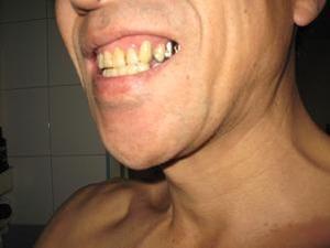 前歯が治った