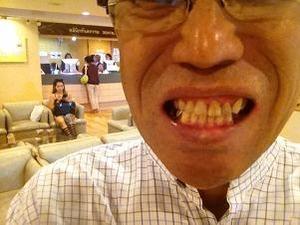 歯科治療完了