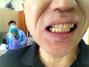 上前歯治療