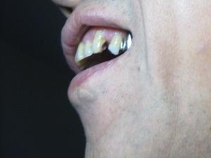 前歯が折れた事件