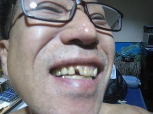 またしても歯が欠けた