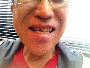 これから歯の治療
