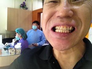 またも前歯が折れた