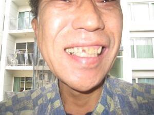 またも前歯欠損