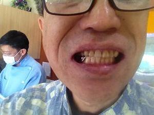 前歯治療完了