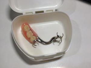 K歯科医師に相談