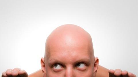 120322stop_balding