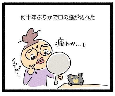 くちのわき1