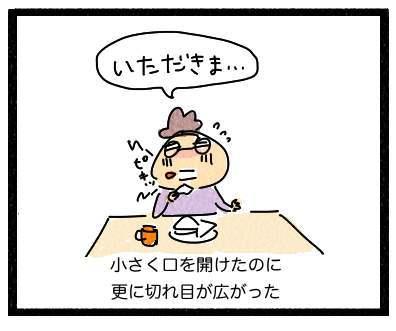 くちのわき3