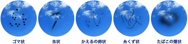 飛蚊症 症状画像1