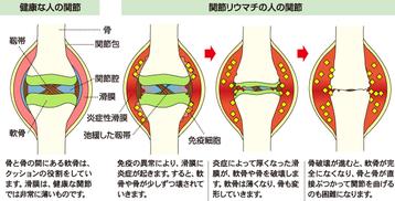 関節リウマチ 画像1