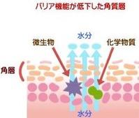 バリア機能が低下した皮膚 画像1