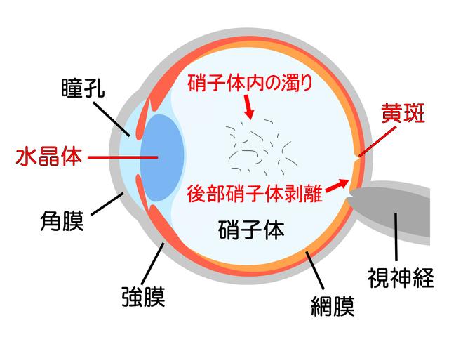 硝子体 画像1