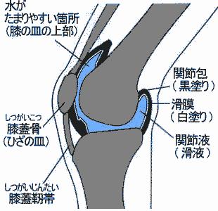 膝に水が溜まる 画像2