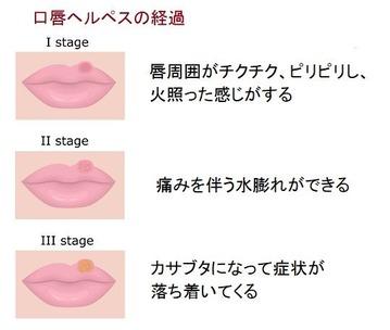 口唇ヘルペス 画像1