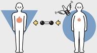 筋肉が減る状態 画像1
